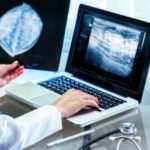 Mammography diagnosis performance under evaluation