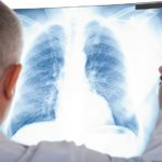 Evaluation of the solitary pulmonary nodule